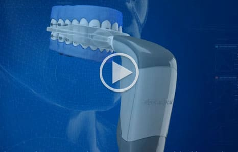 Acceledent Video Thumbnail Nelson Orthodontics in Raleigh and Fayetteville NC