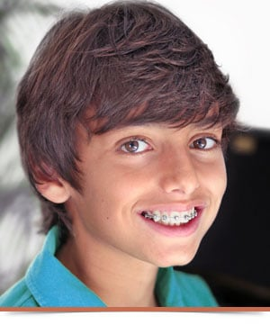 All About Braces Nelson Orthodontics in Raleigh and Fayetteville NC